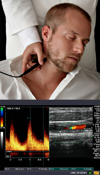 ECD (extracranial Doppler), Neurologist, Dubai, UAE