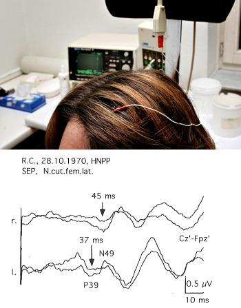 SSEP (somato-sensitive-evoked potentials)- Neurology, Psychiatry, Psychology, Counseling in Dubai, UAE