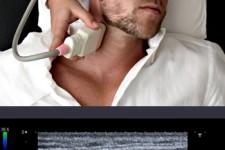 الموجات فوق الصوتية للأوعية الدموية