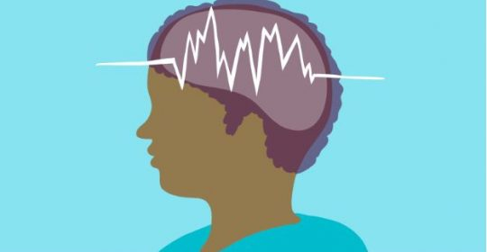 Epilepsy: Causes, Symptoms and Treatments