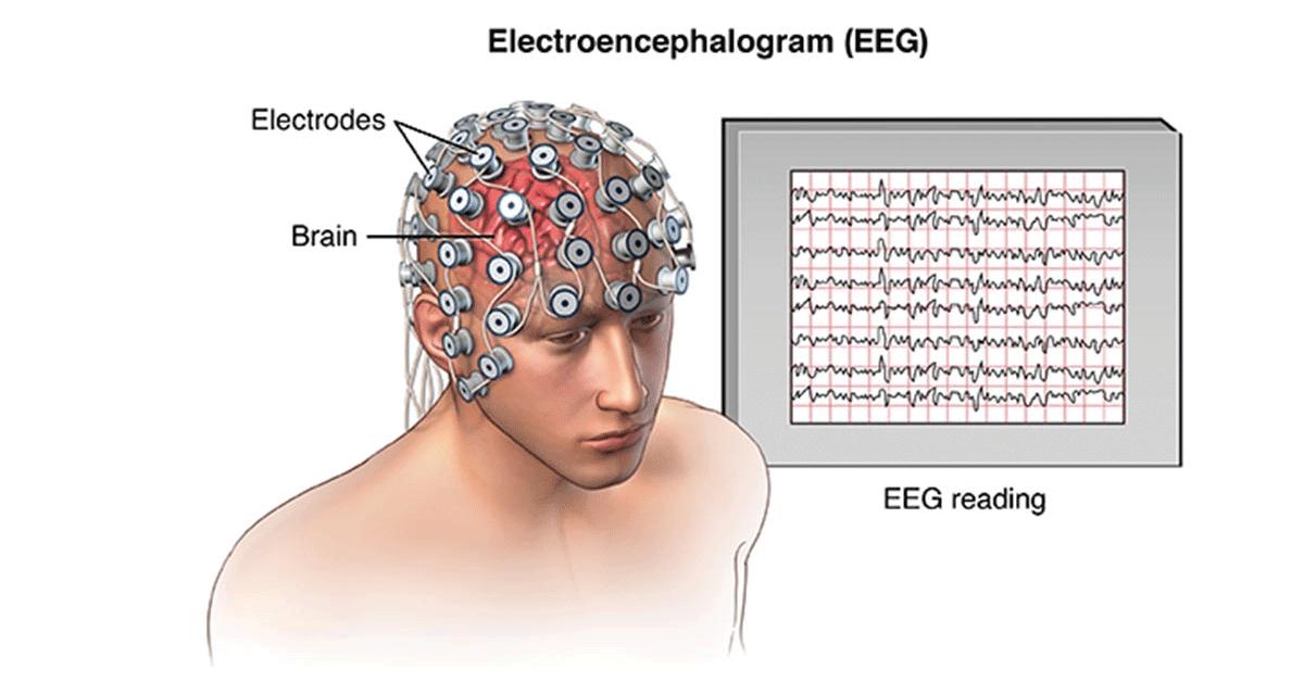 eeg electroencephalography dubai