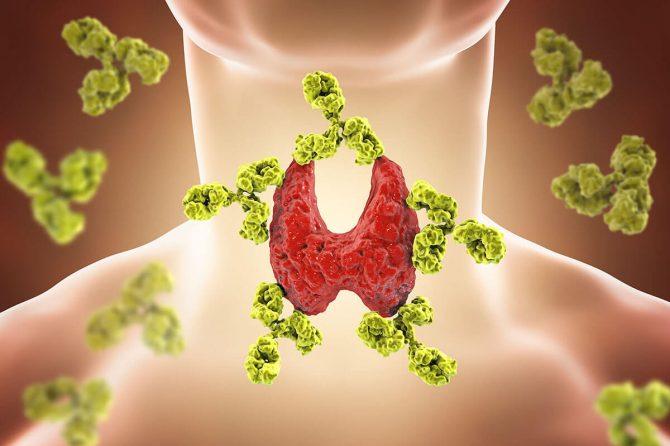 Autoimmune and Inflammatory Disorders
